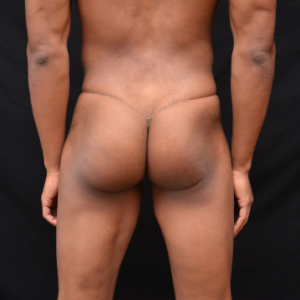 Men's Thong Underwear : E-Kini Clear Lined Thong For Men