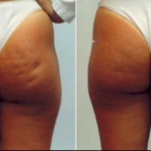Cellulite Blasting Skin Spa Soap